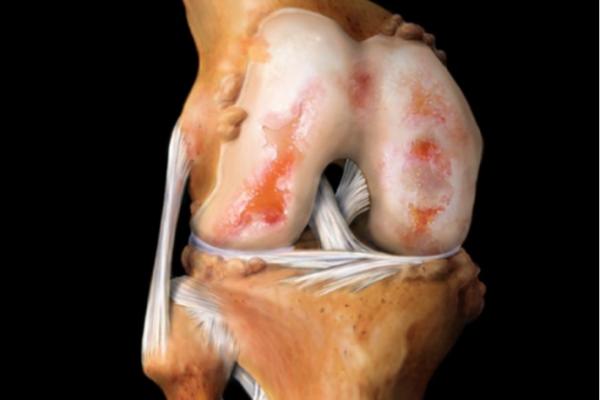 Признаки артрита коленного сустава, как распознать2