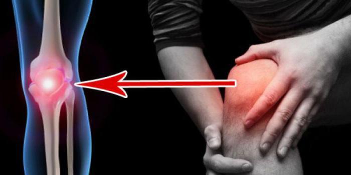 Признаки артрита коленного сустава, как распознать3