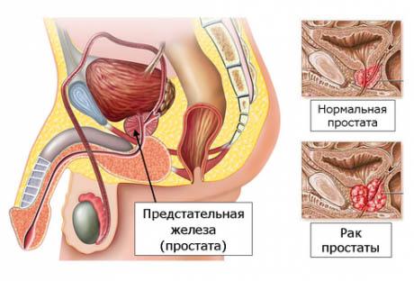 Рак простаты. Причины и симптомы