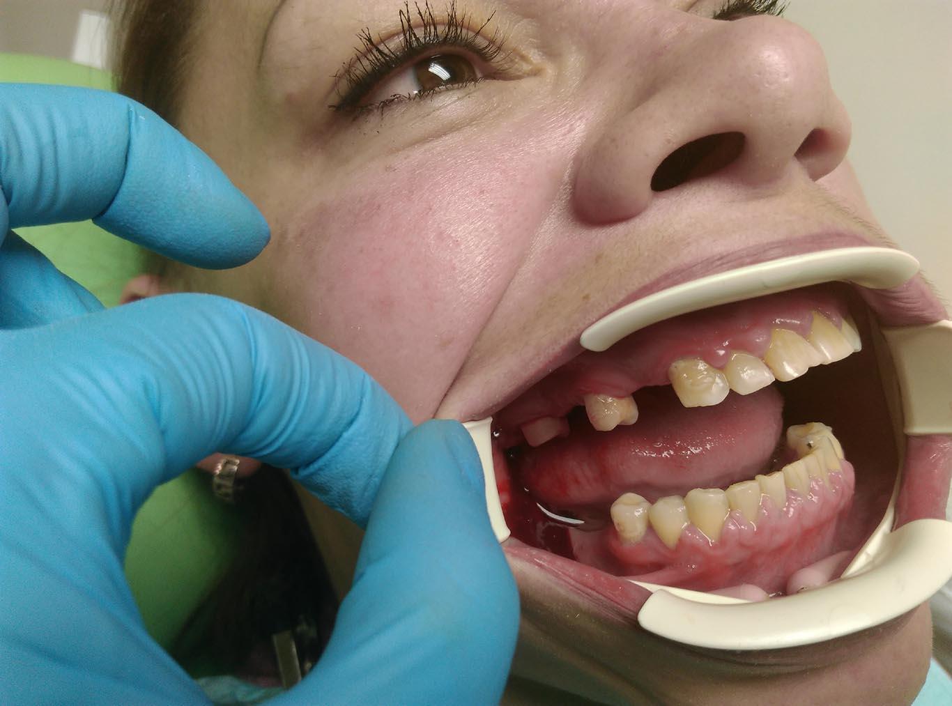 Протезирование зубов 2