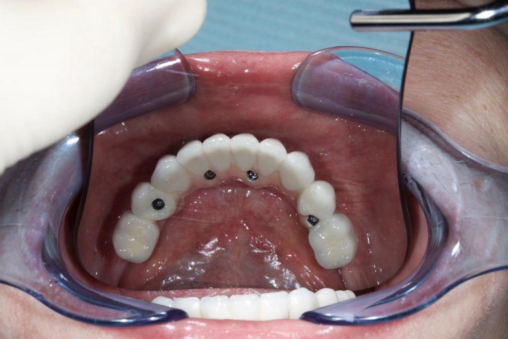 Протезирование зубов 3