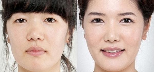 Зачем делать пластику носа