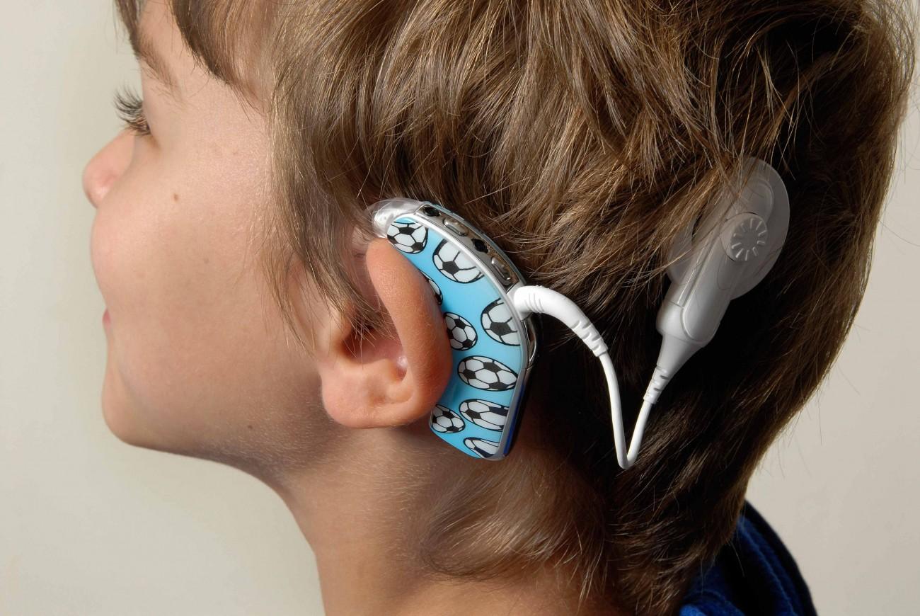 Кохлеарные импланты при потере слуха