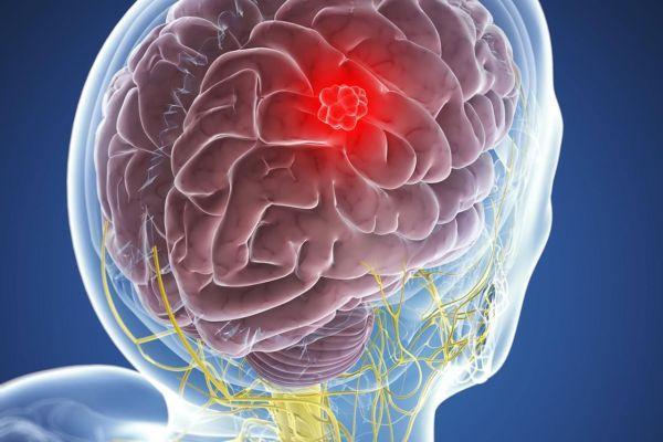 opuhol-golovnogo-mozga