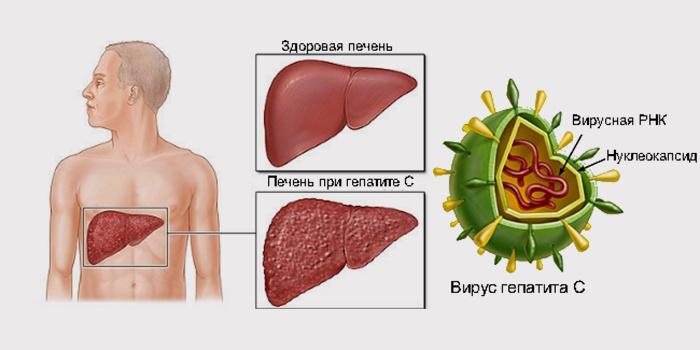 Лечить или не лечить гепатит С
