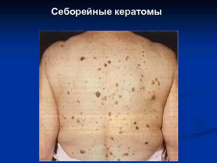 Классификация новообразований на коже лица 1