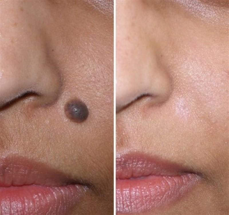 Классификация новообразований на коже лица 3
