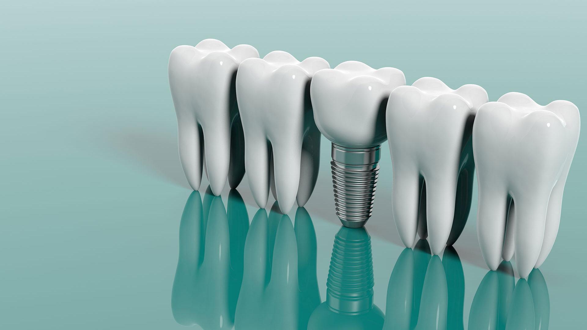 dental-implants-green-background-1920×1080