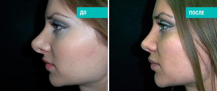 уменьшение носа