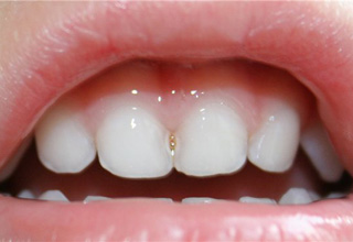 karies-mezhdu-zubami09