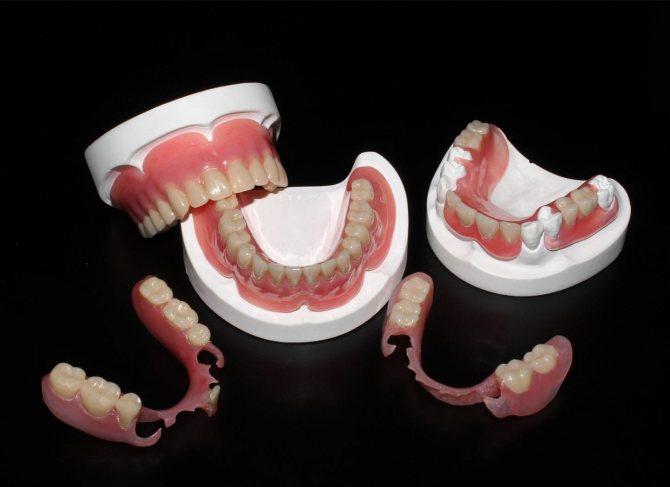 protezy-iz-akrila2