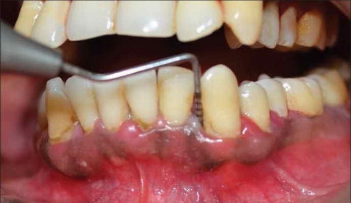ochagovaya-forma-hronicheskogo-parodontita
