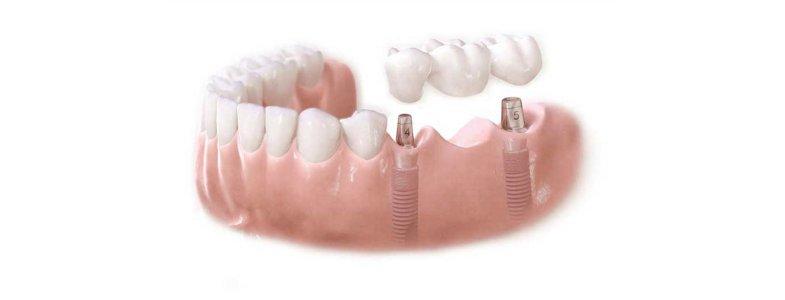 mostovidnyie-protezy-1