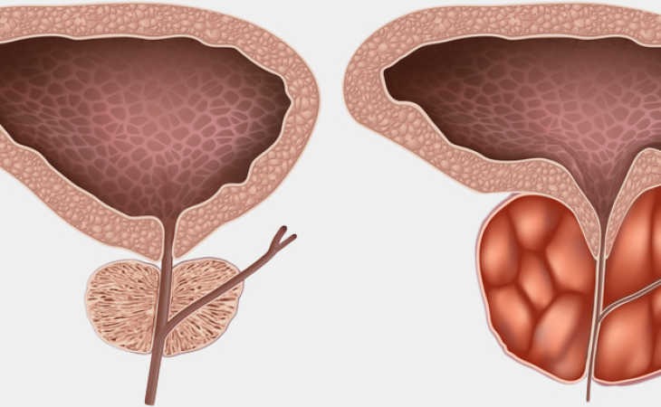 posledstviya-prostatita-vozmozhnye-oslozhneniya-soputstvuyushchie-zabolevaniya-simptomy